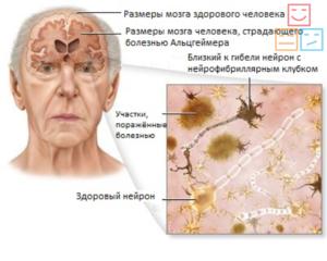 Действие на мозг